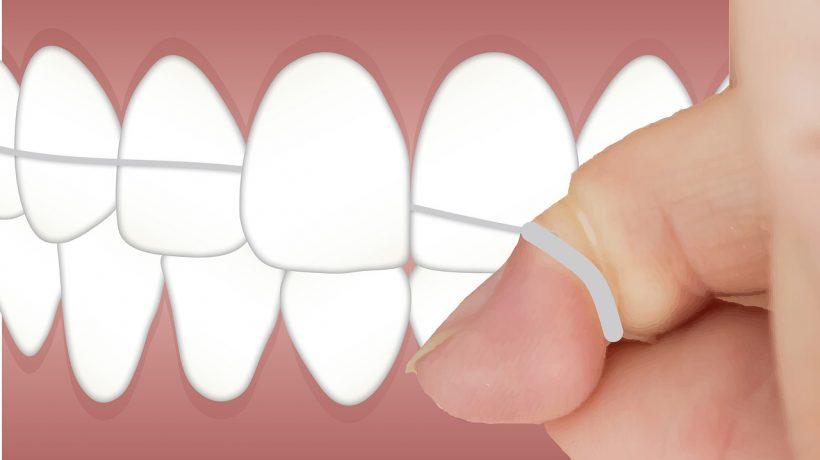 Five Effective Ways to Prevent Dental Cavities