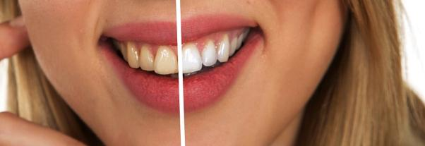 LED Teeth Whitening Safe and Effective for Your Teeth
